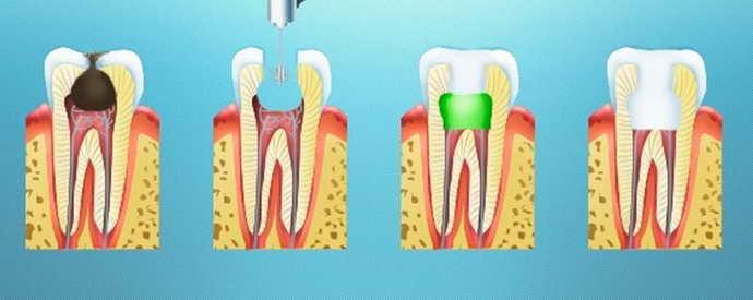 Проведение девитальной операции по удалению пульпы зуба