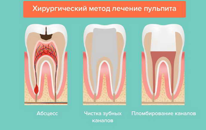 Проведение витальной операции по удалению пульпы зуба