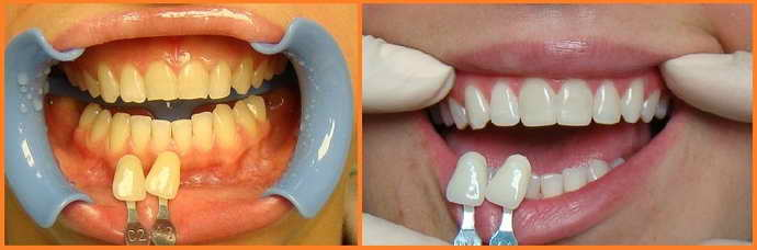 Реставрационный способ отбеливания зубов