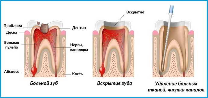 Схема депульпации зуба