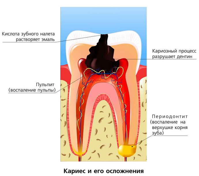 Симптомы кариеса