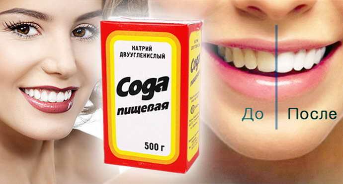 Сода от зубного камня