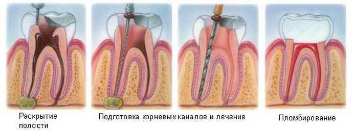 Терапевтическое лечение кисты зуба