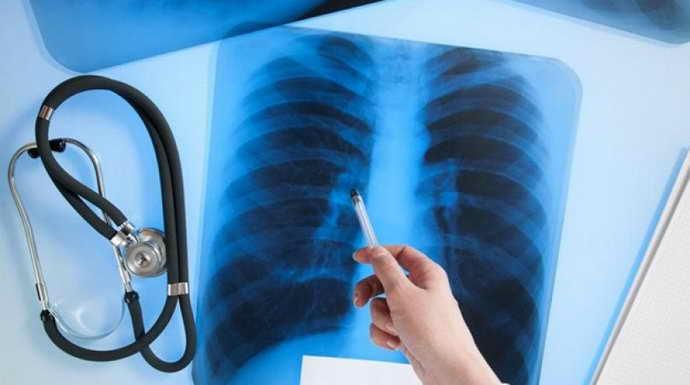 Туберкулез как противопоказания к имплантации зубов