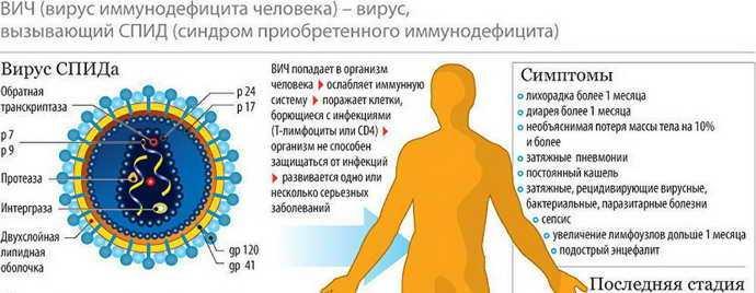 ВИЧ-инфекцию и СПИД