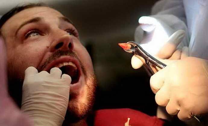 Вероятные последствия от алкоголя перед удалением зуба