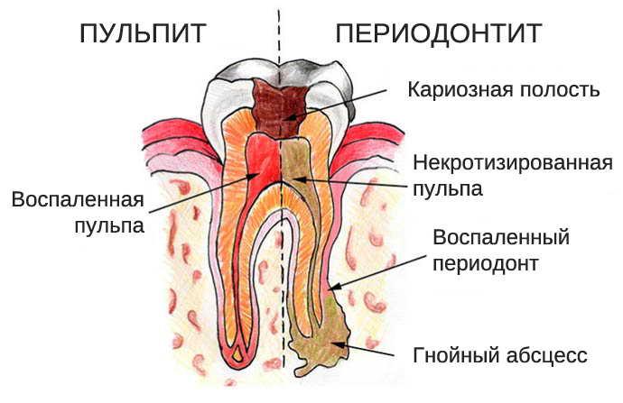 Возможные осложнения от пульпита молочных зубов