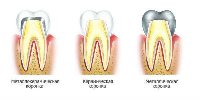 Зубные коронки после депульпирования зуба