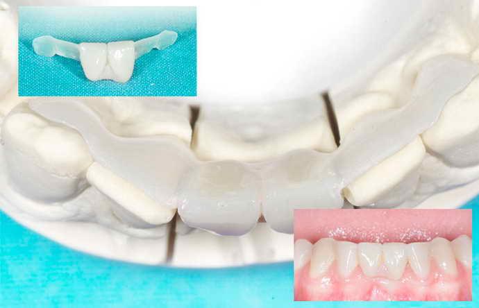 Адгезивный мостовидный протез устанавливается в качестве замены передних зубов