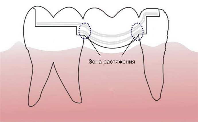 Повышение риска развития кариеса при адезивном мостовом протезировании