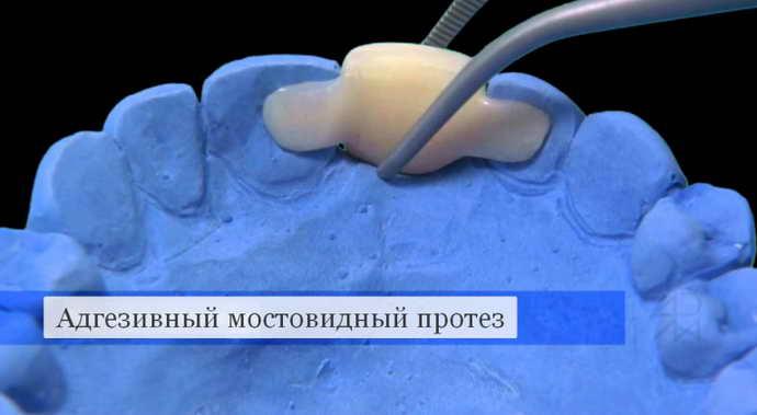 Особенности адгезивного мостовидного протезирования