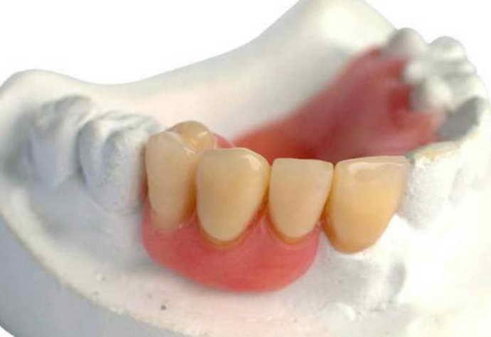 протезирование подходит для использования при полной или частичной потере зубов