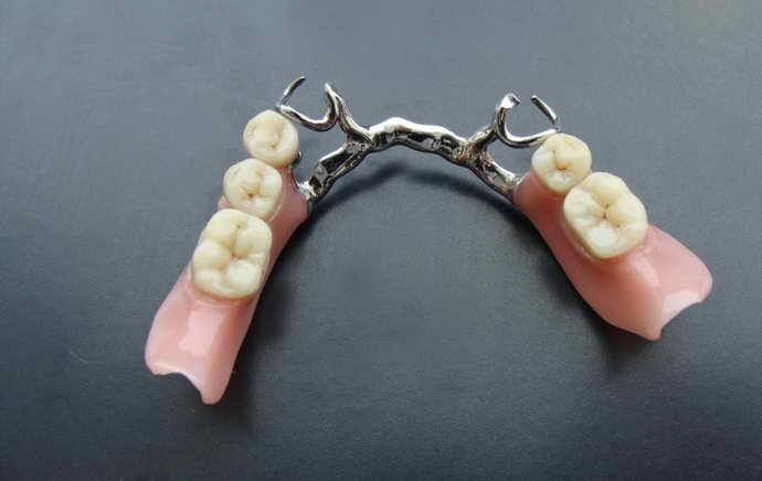Акриловые зубные протезыимеют свои преимущества