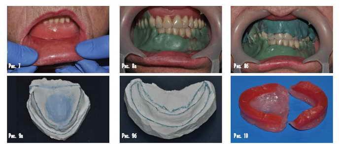 Акриловые протезыизготовляют в два этапа