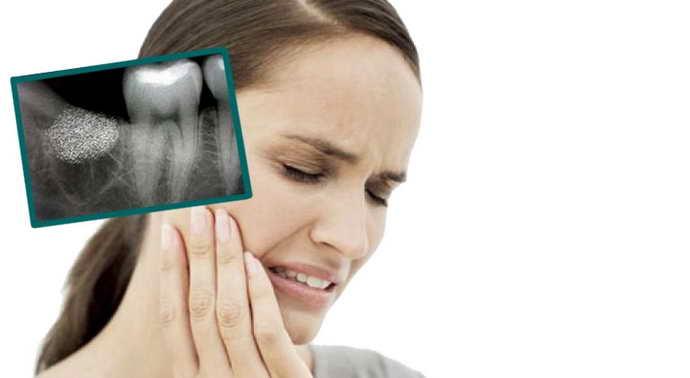 Диагностика и лечение альвеолита