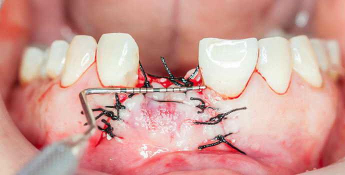 Лечение альвеолита после удаления зубов мудрости: фото сухой лунки, симптомы и признаки, как лечить этот синдром и что делать дома