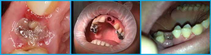 альвеолит после удаления зуба мудрости