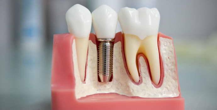 Штифт в зубе: что это такое и для чего устанавливают конструкции