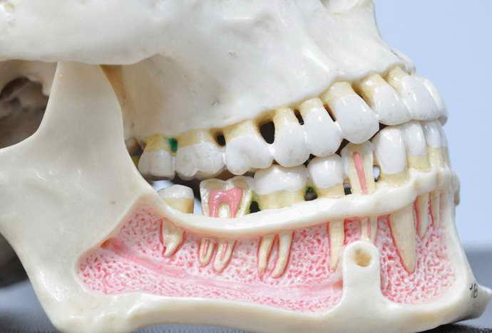Аномальное количество зубов