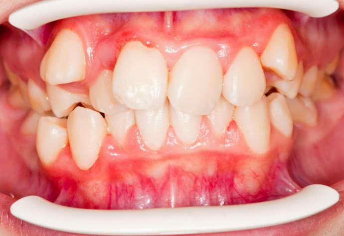 Неправильное формирование зубов