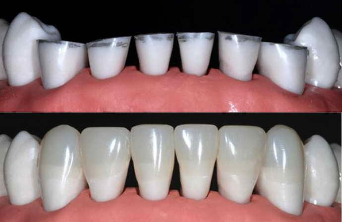 Зубы в виде конуса