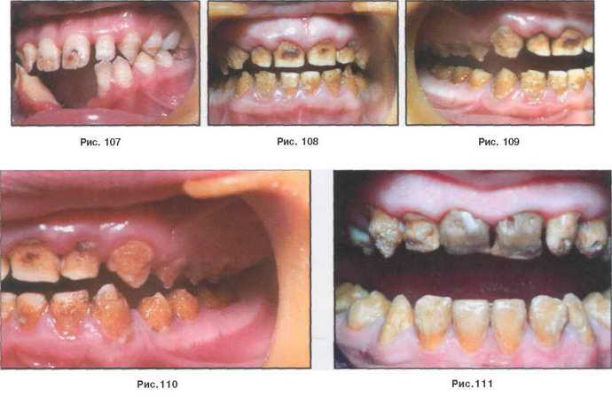 Зубы Пфлюгера