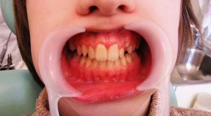Гигантские зубы с большой коронкой