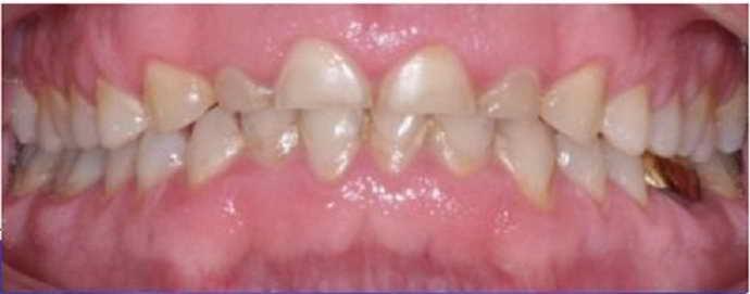 Мелкие зубы