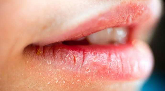 Причины и симптомы возникновения атопического хейлита