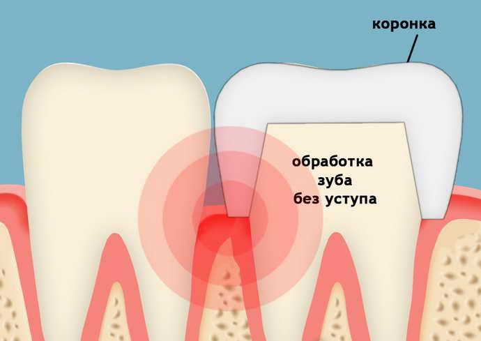 почему болит зуб под коронкой