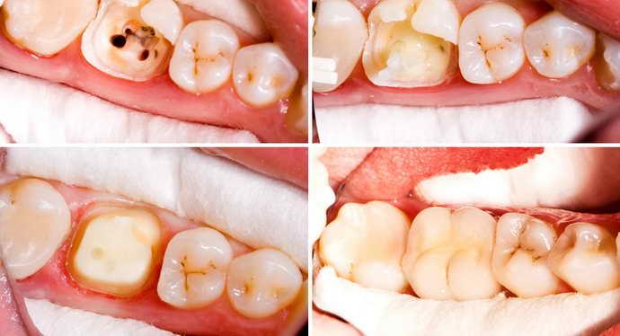 Причины боли зуба под коронкой