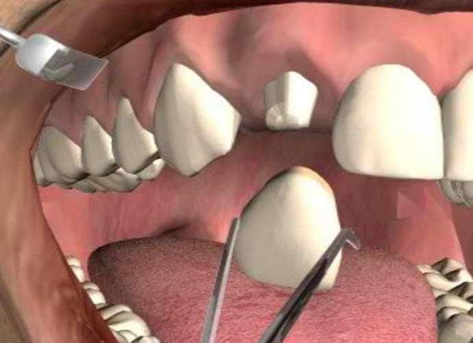 болит зуб под коронкой лечение