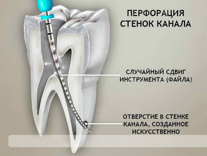 Пульпит можно диагностировать при осмотре полости рта
