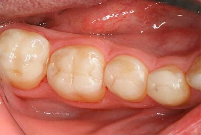 Размер пломбы боль запломбированного зуба