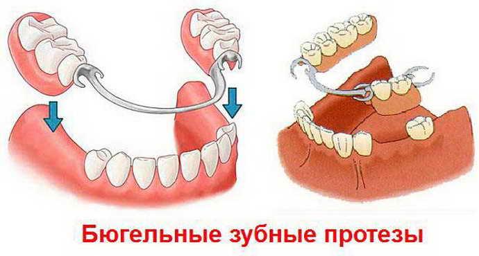 Съемный протез на верхнюю челюсть
