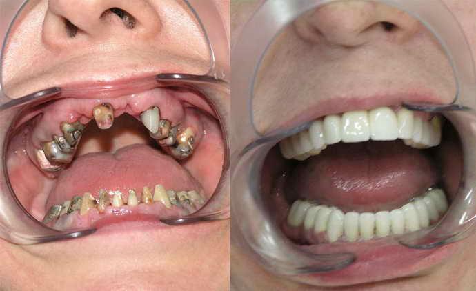 Процесспротезирования верхней челюсти