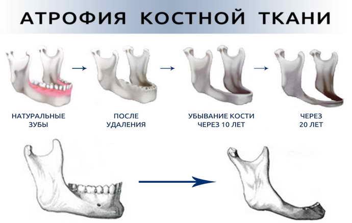 сильная атрофия челюсти и бюгельный протез на верхнюю челюсть