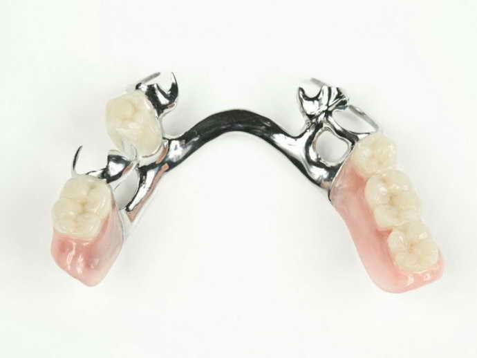 Бюгельные протезы на верхнюю челюстьбывают разными