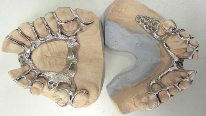 Бюгельные съемные протезы на верхнюю челюстьявляются особенными