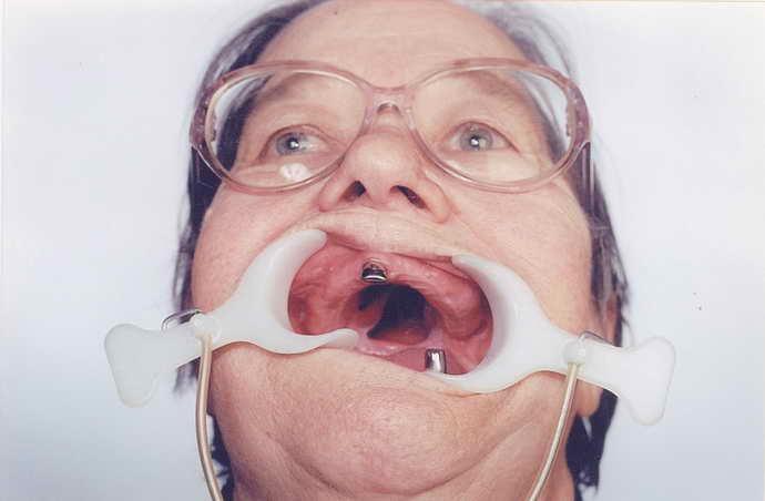 атрофия кости челюсти