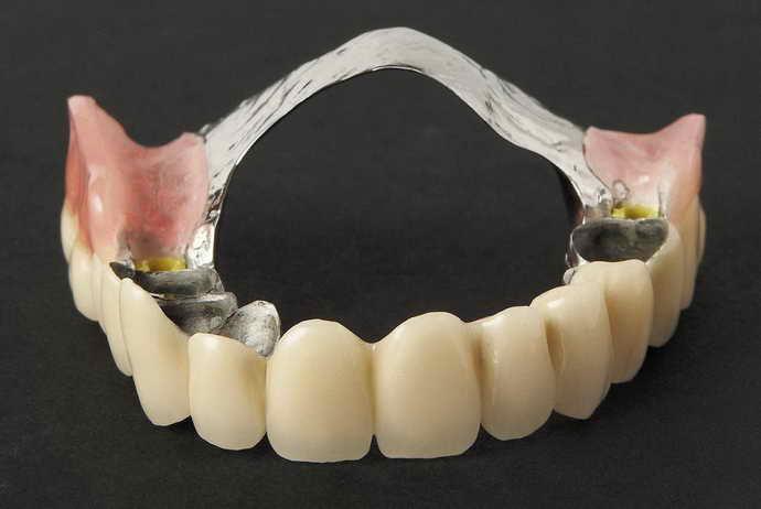 Зубные протезы нового поколения без нёба