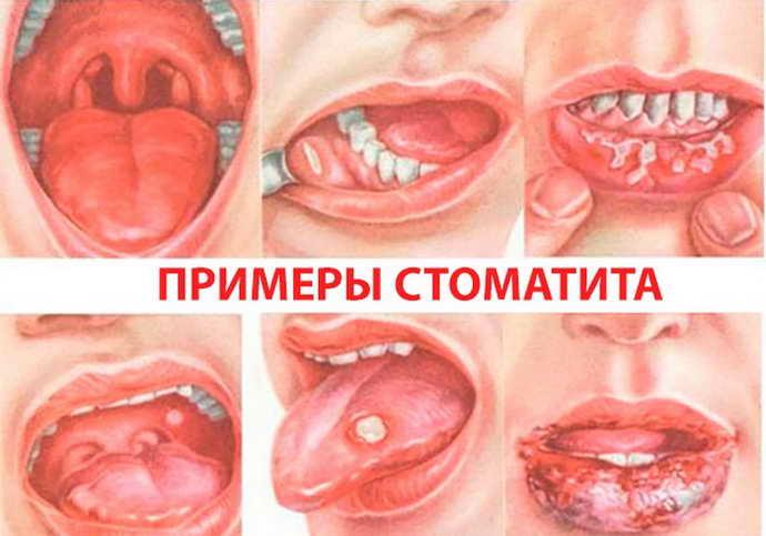 Симптоматика стоматита