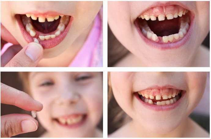 что делать после удаления молочного зуба