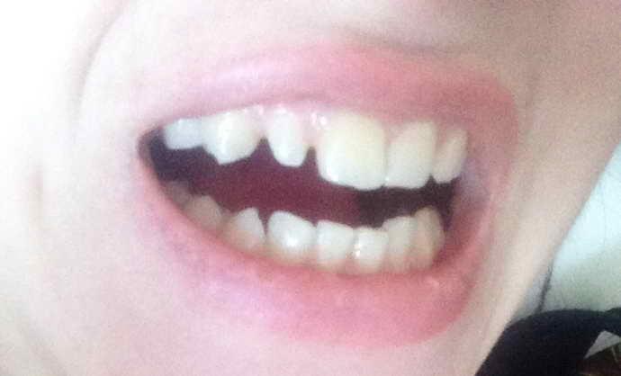 Смещение зубного ряда при росте зуба мудрости