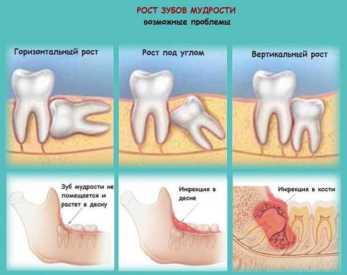 Причины, требующие удаления зуба мудрости