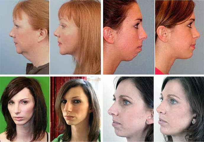 Дистальный прикус у взрослых можно исправить только хирургическим методом