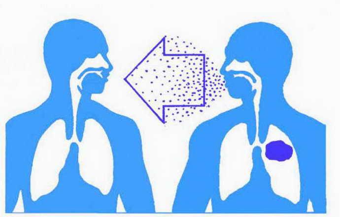энтеровирусный везикулярный стоматит причины патологии и пути заражения