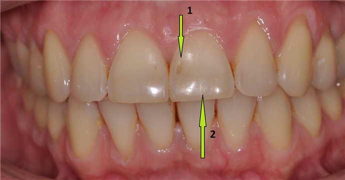 что такое эрозия зубной эмали