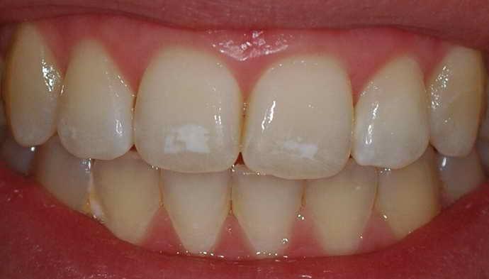 Каковы признаки эрозии эмали зуба