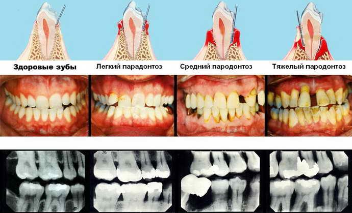 этапы пародонтоза